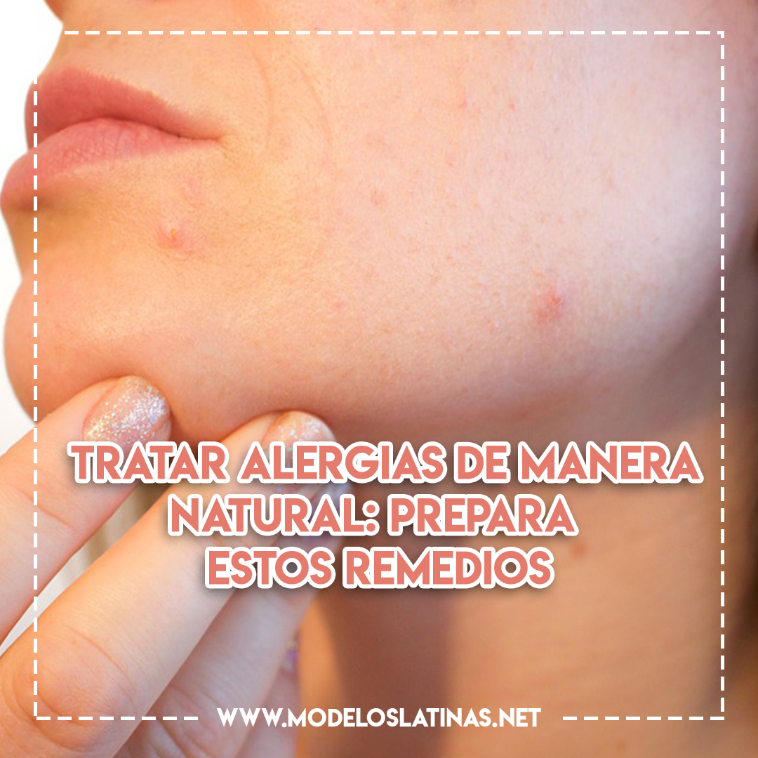 Tratar alergias de manera natural: prepara estos remedios