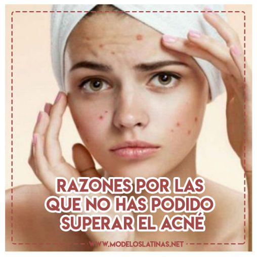 Superar el acné