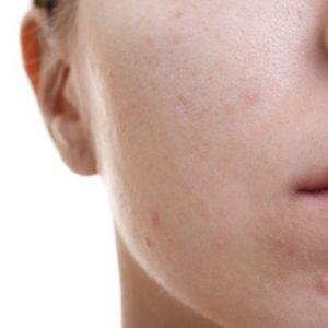Aprende a controlar la piel grasa